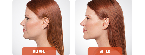 Before-and-after-KYBELLA-1