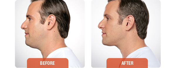 Before-and-after-KYBELLA-2